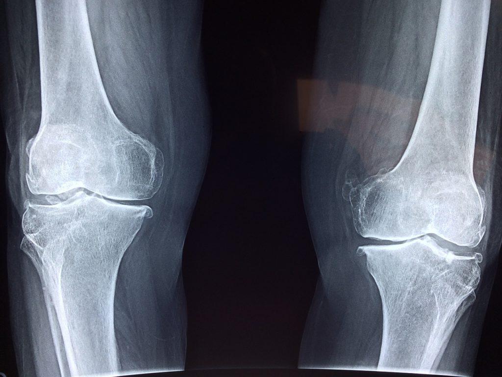 Lesiones de cartílago de rodilla tratamiento